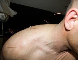 Akkupunktur som behandling