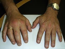Kraftigt hævet hånd